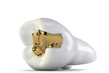 Zahngold