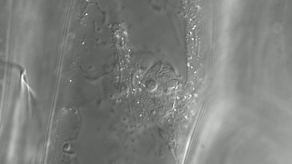 Movement of organelles in onion bulb scale epidermis cell