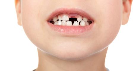 lost tooth boy portrait
