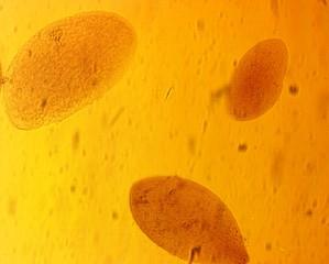Opalina ranarum - permanent slide plate under high magnification