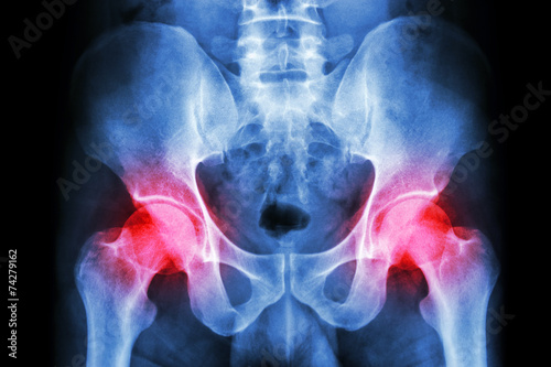 human's pelvis and arthritis at both hip joint (Gout,Rheumatoid) - 74279162