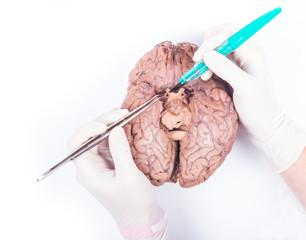 human brain dissection