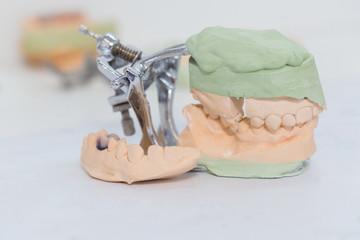 dental cast model