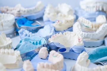 Dental plaster moulds and imprints