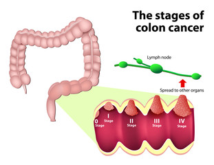 The Stages of Colorectal Cancer