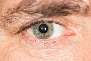 eye. macro