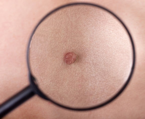 Magnified birthmark  under the magnifying glass