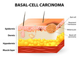 Basal-cell carcinoma or basal cell cancer