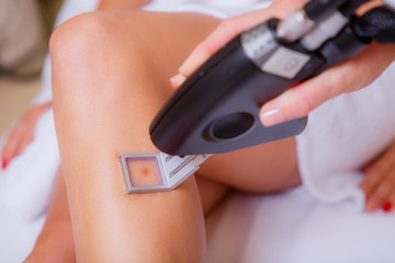 cosmetic procedures. laser hair removal