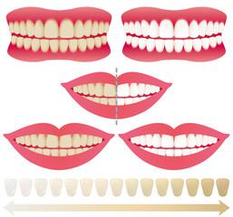 歯 ホワイトニング before after 広告イラスト