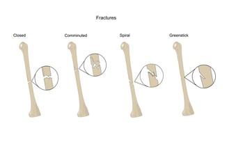 Tipi comuni di fratture