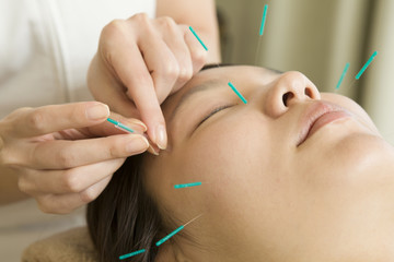 Acupuncturist to refer to acupuncture to face