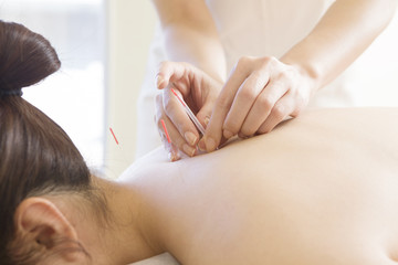 Young women receiving acupuncture treatment