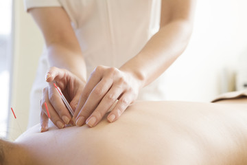 Women receiving acupuncture treatment