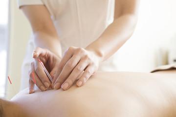 Women receiving acupuncture treatment