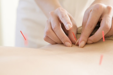 Women undergoing acupuncture waist