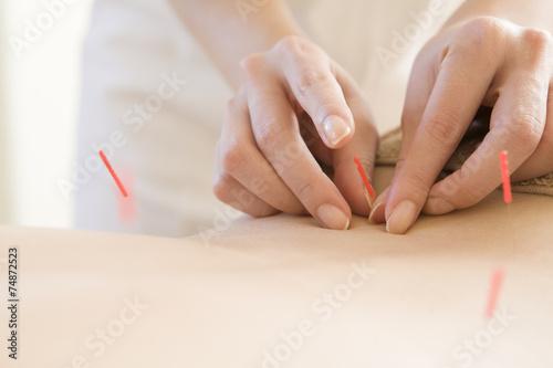 Women undergoing acupuncture waist - 74872523