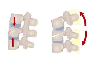 vari tipi di frattura vertebrale