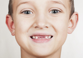 loss of primary teeth in children