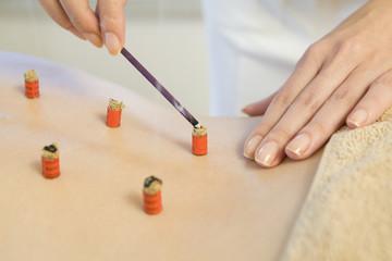 Moxibustion treatment of back