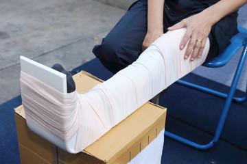 leg with a splint