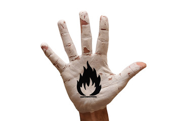 palm flammable