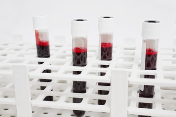 Blood samples are analyzes in the container