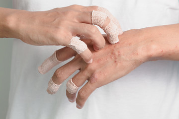 Itching caused by allergies, skin women.