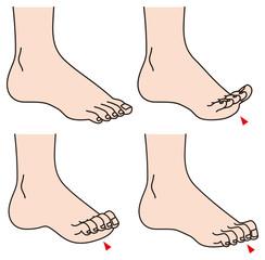 足の指のトラブル