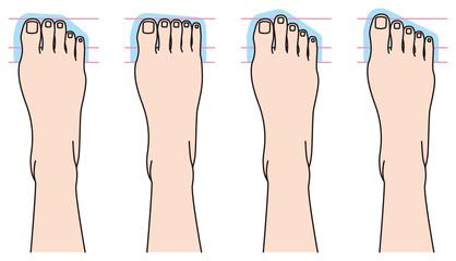 足の指の形