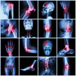 Collection human joint and arthritis and stroke - 75632150