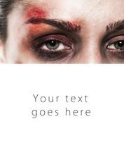 Beaten up girl close-up card