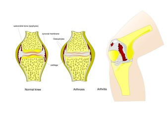 ginocchio, normale, con artrosi, con artrite