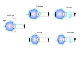visione e difetti visivi, correzione con lenti