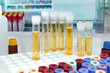 analysis of urine tubes in lab