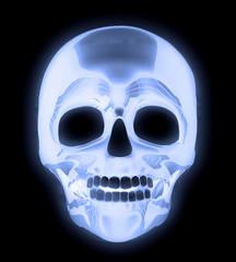 X-ray Human Skull