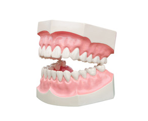 Dentoform, Dental teeth model
