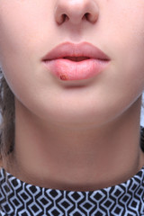 beautiful lips virus infected herpes