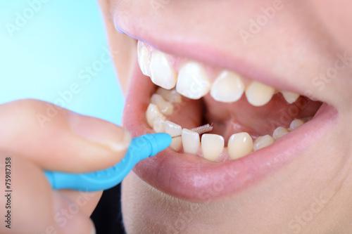 Zahnpflege der Zahnzwischenräume
