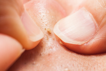 Squeezing pimple blackheads from the nose with finger nails