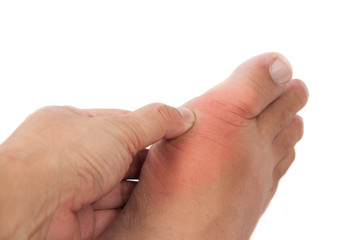Hand embracing foot with gout inflammation