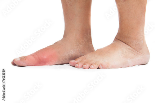 Pair of feet with deformed right toe with gout inflammation. - 76033559