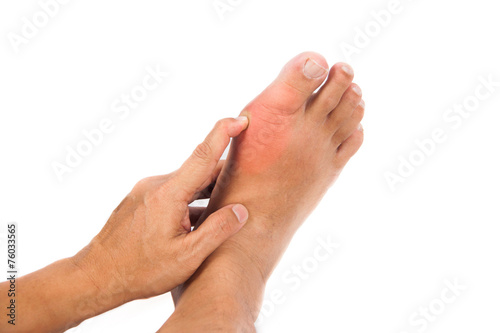 Painful gout inflammation on big toe joint - 76033565