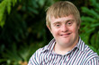 Portrait of young handicapped man. - 76063928