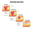 wound healing - 76104709