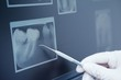 Leinwanddruck Bild - Gloved hand holding dental tool to teeth x-ray