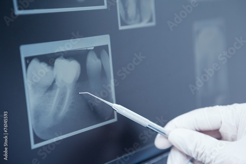 Gloved hand holding dental tool to teeth x-ray