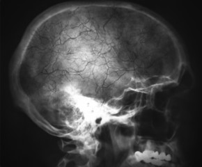 Xray of the head