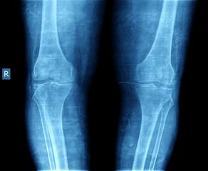 xray of knee