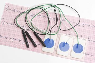 Electrocardiogram Leads